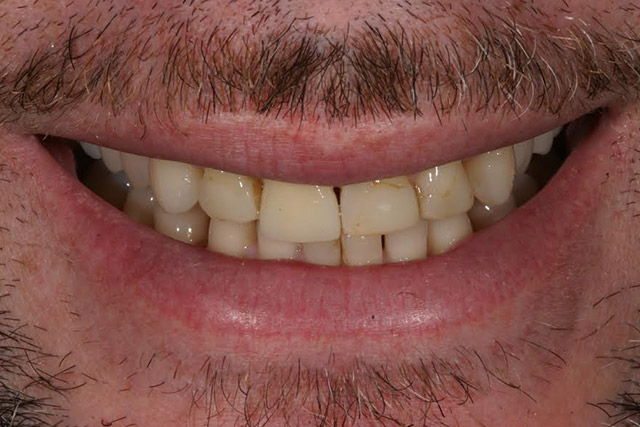 Case-7-before-porcelain-veneers