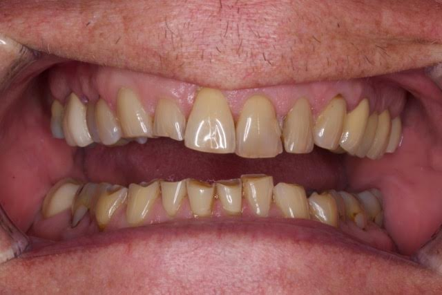 Case-8-before-porcelain-veneers