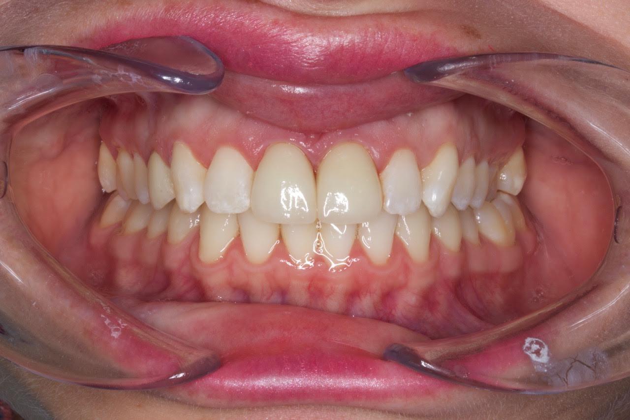 after-patient-9