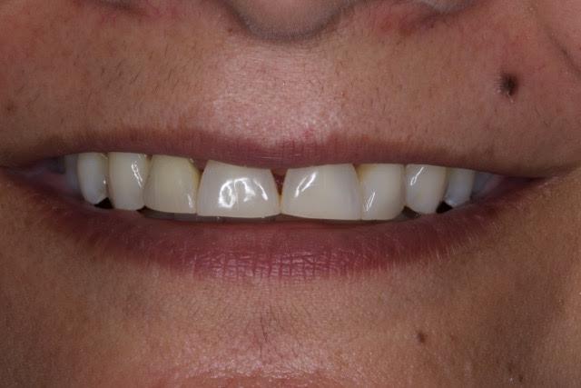 Case-3-before-porcelain-veneers