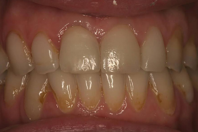Case-5-before-porcelain-veneers
