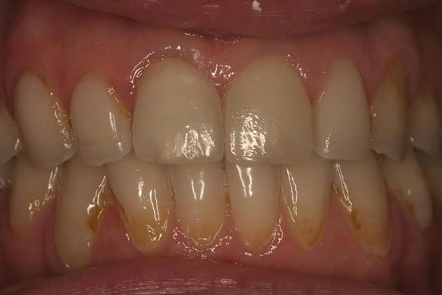 Case-5-before-porcelain-veneers