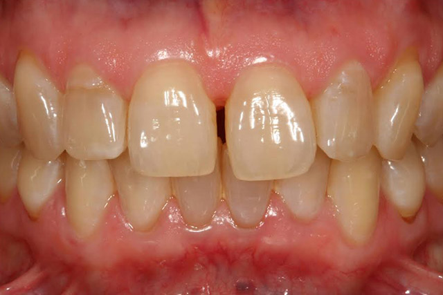 Case-6-before-porcelain-veneers