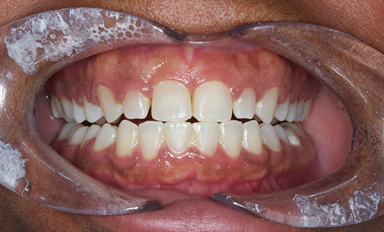 Before Gum Recontouring