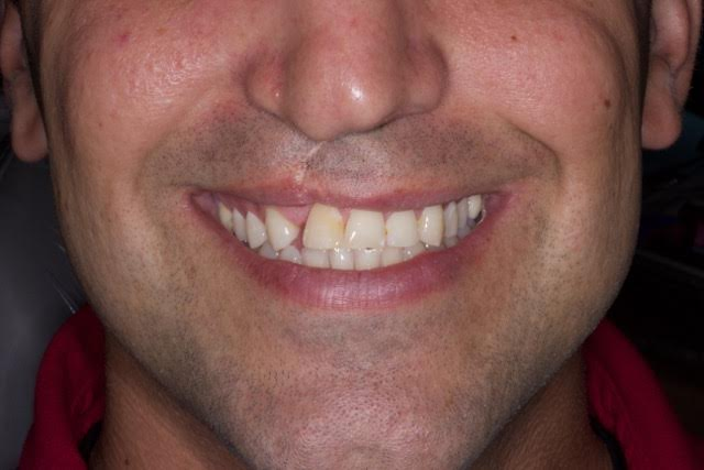 Case-2-before-porcelain-crown-and-veneers