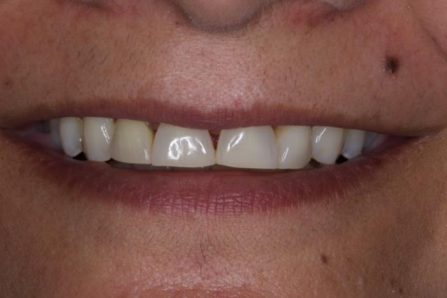 Case-3-before-porcelain-veneers