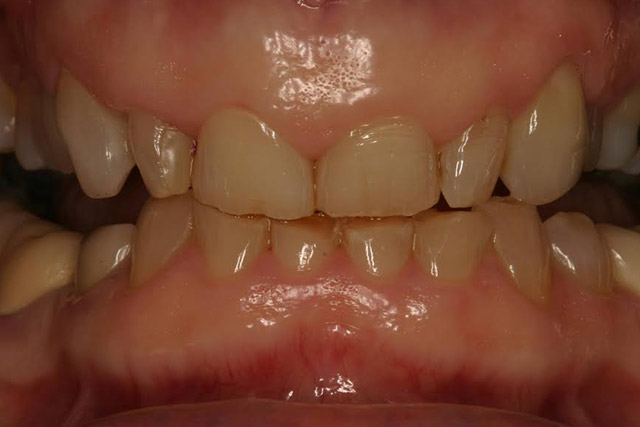 Case-4-before-porcelain-veneers