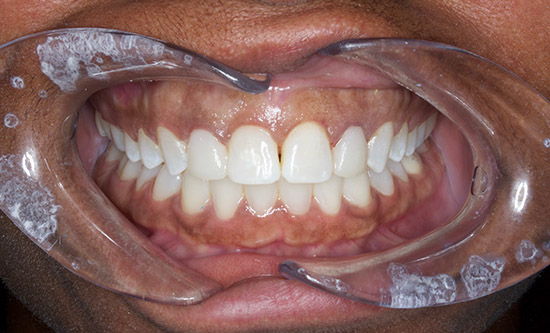 After Gum Recontouring