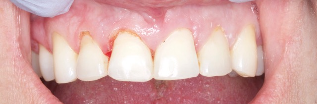 raleigh dentist gum recontour