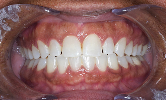 Healing After Gum Recontouring