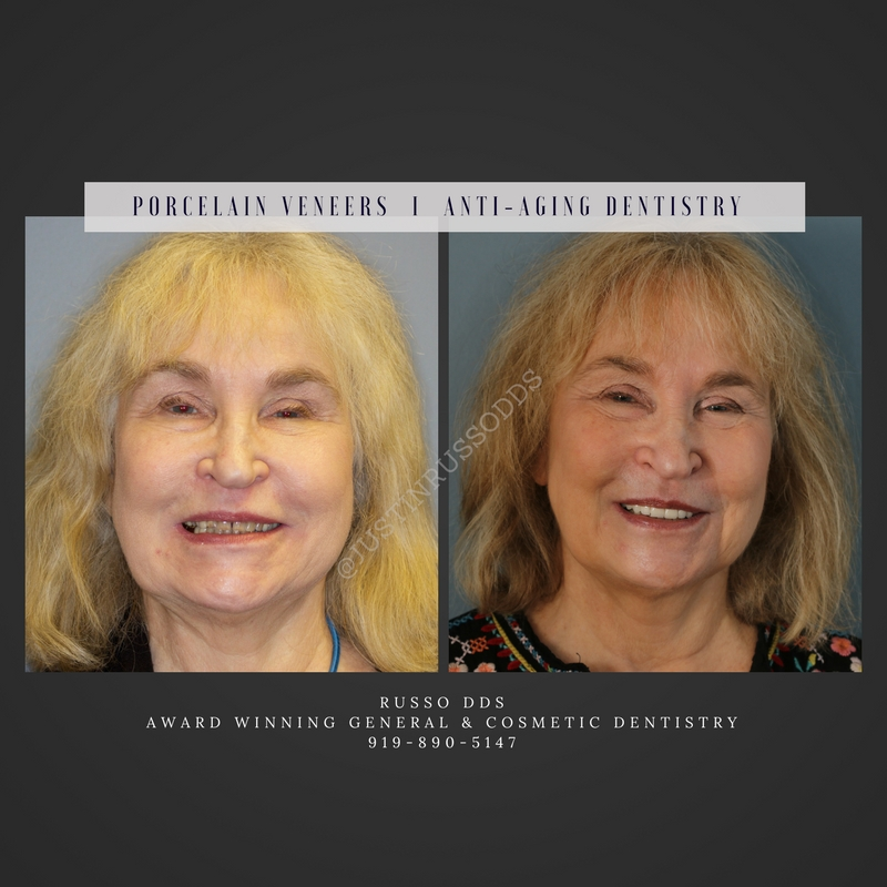 Change Your Smile With Porcelain Veneers