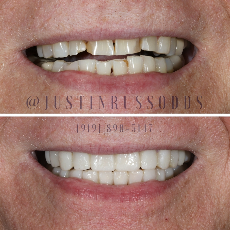 Before and After Cosmetic Dentistry From Russo DDS