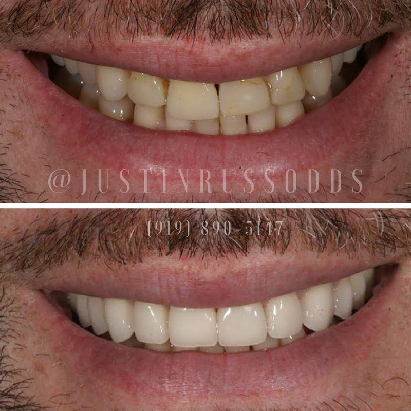 Before And After Cosmetic Dental Work