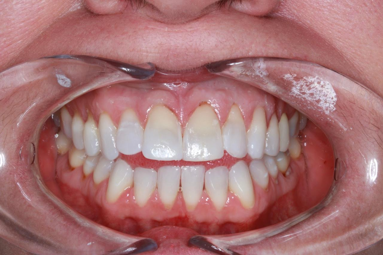 Dental Bonding Raleigh   Bonding Procedure Durham   Dr  Russo