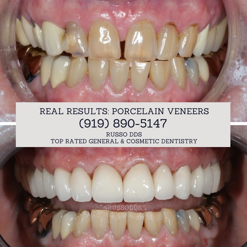 Porcelain Veneers From Top Rated Cosmetic Dentist