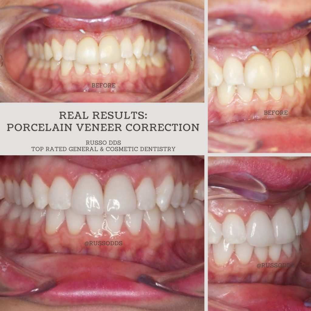 Porcelain Veneer Correction From Russo DDS