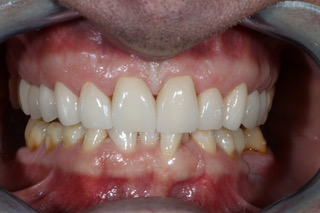 veneers before