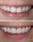 cosmetic dentist Durham, NC