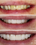 transform your smile at Russo Dentistry