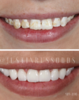 smile improvements by Dr. Russo