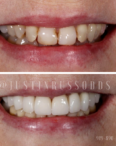 dentistry transformation pictures
