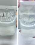 dentist tooth mold